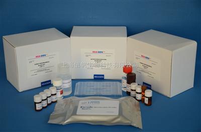 人血管紧张素转化酶(ACE)ELISA Kit