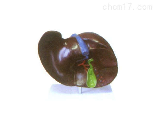 肝胆结石模型