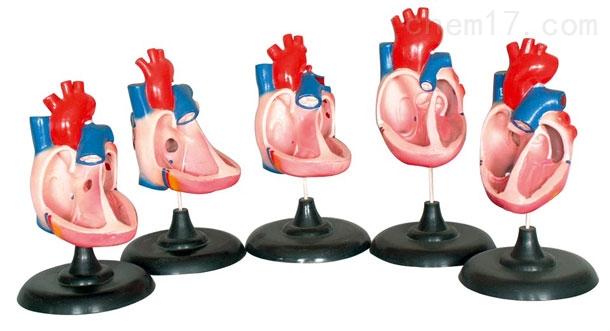 先天性心脏畸形(五部件) 生物模型