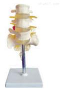 腰骶椎与神经模型(3个腰椎)  教学模型