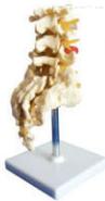 腰骶椎与神经模型(4个腰椎)  教学模型