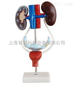 女性泌尿生殖系统解剖模型|泌尿生殖系统模型