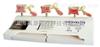 SMD01562骨质疏松症模型(三部件)  教学模型