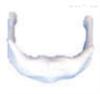 SMD0131舌骨放大 教学模型